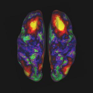 MRI Brain Activity Scan
